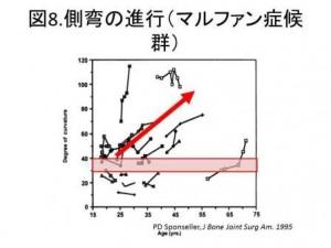 図8 側弯の進行(マルファン症候群)