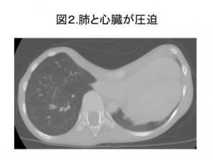 図2 肺と心臓が圧迫