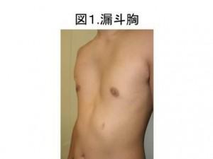 図1 漏斗胸