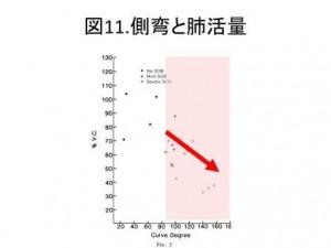 図11 側弯と肺活量