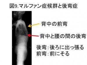 図9 マルファン症候群と後弯症