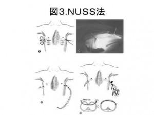 図3 NASS法