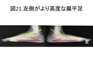 図21 左足がより高度な偏平足